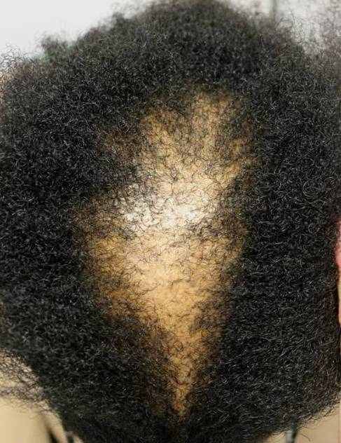 Black Woman Androgenic Alopecia