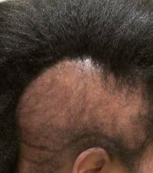 Black woman alopecia